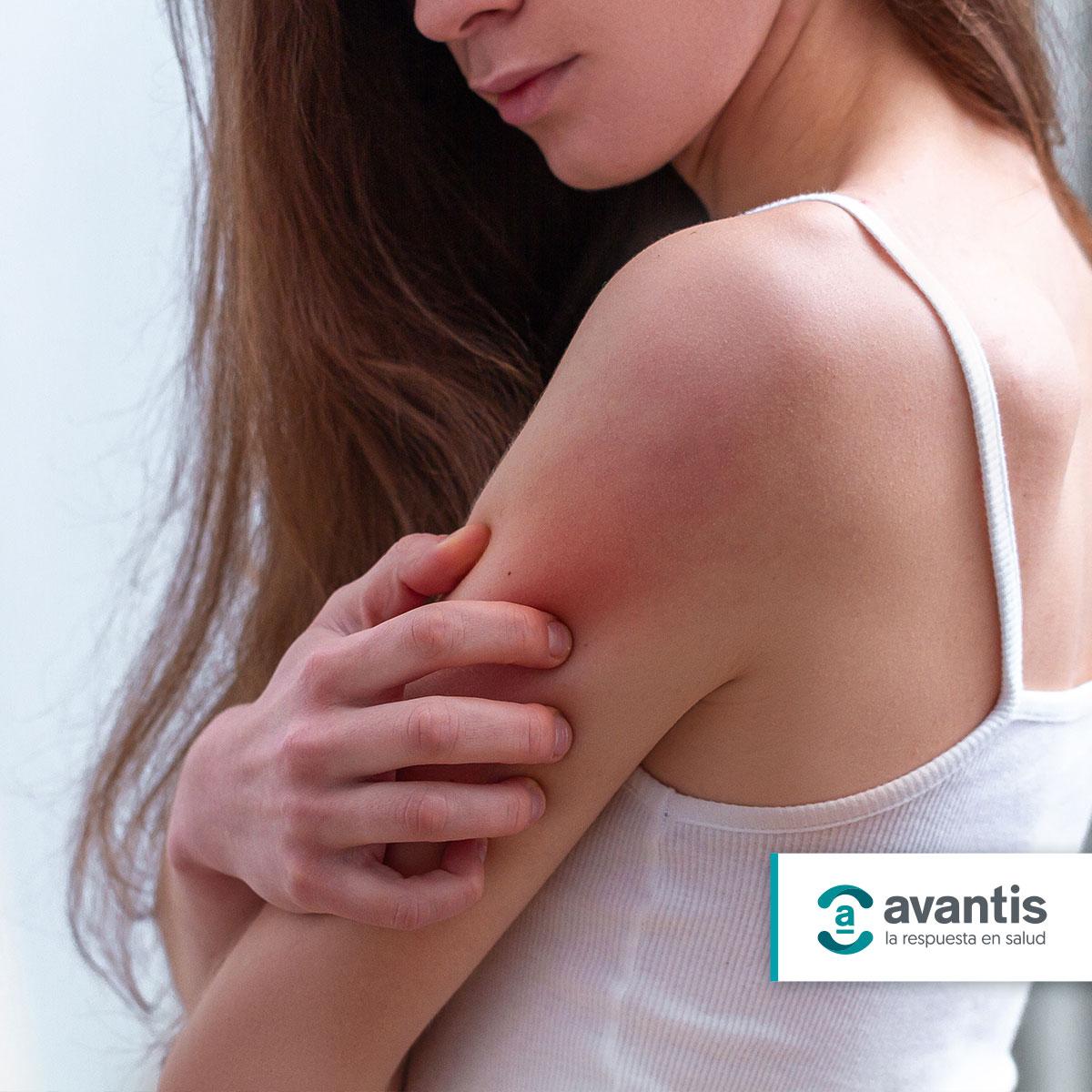 Enfermedades de la piel: Psoriasis inversa